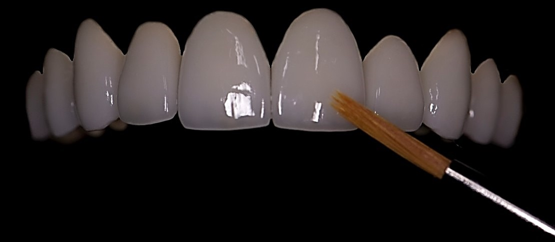 Porcelain Veneers -Timothy Adams DDS - Indianapolis